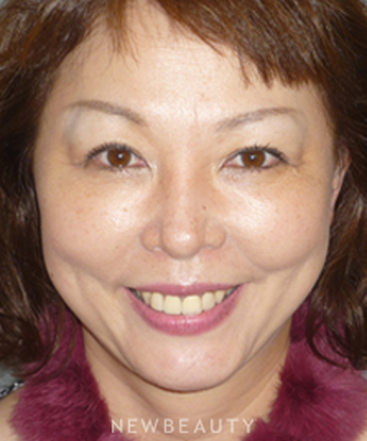 dr-davis-nguyen-facelift-necklift-blepharoplasty-b