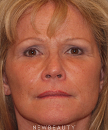 dr-corey-yeh-facelift-eyelift-necklift-micro-fat-transfer-b