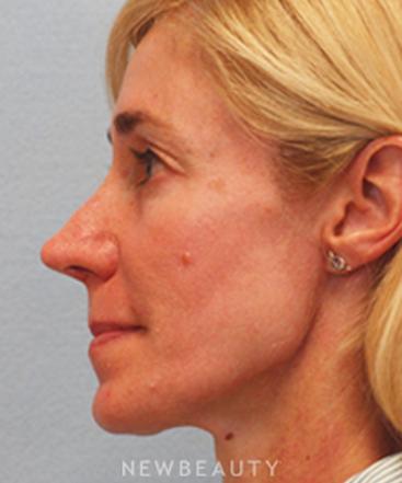 dr-corey-yeh-rhinoplasty-b
