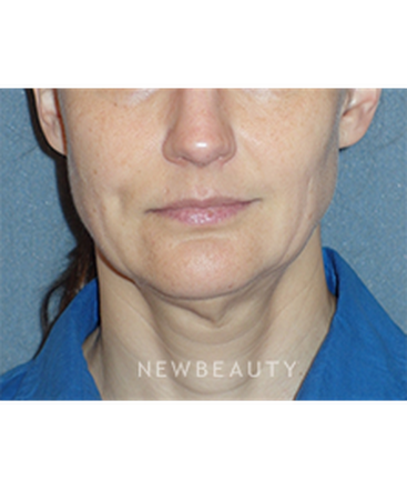 dr-min-ahn-mini-facelift-with-necklift-b