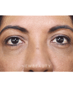 dr-vivian-bucay-skin-tightening-energy-based-b