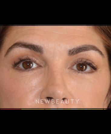 dr-natalir-attenello-eyebrow-hair-restoration-b