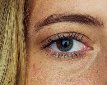Everything You Should Know Before Getting Eyelid Surgery
