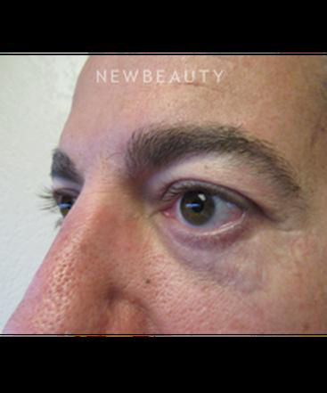 dr-jennifer-e-boll-upper-blepharoplasty-b