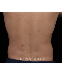 dr-jennifer-segal-coolsculpting-b