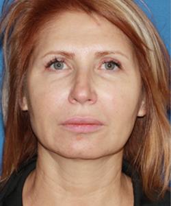 dr-konstantin-vasyukevich-traditional-facelift-b