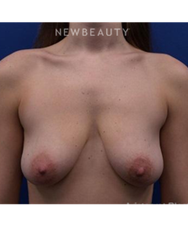dr-kevin-tehrani-breast-lift-with-implants-b