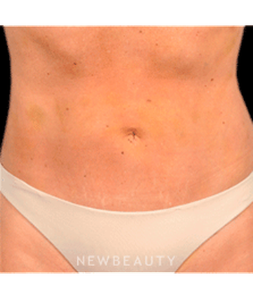 dr-bradley-bengtson-liposuction-b