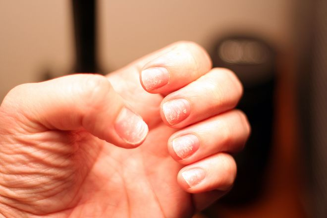 What It Really Means When You Have Ridges on Your Nails - Hands + ...