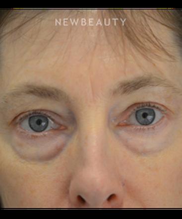 dr-b-aviva-preminger-eyelift-b