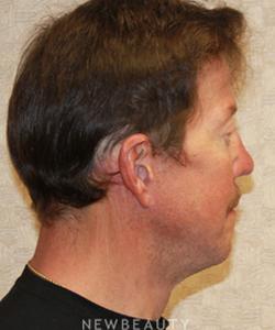 dr-dilip-d-madnani-facelift-necklift-eyelift-b
