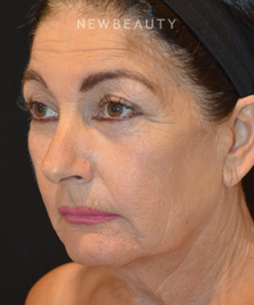 dr-cynthia-m-poulos-facelift-b