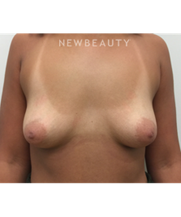 dr-craig-baldenhofer-breast-augmentation-b