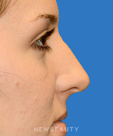 dr-william-franckle-rhinoplasty-b