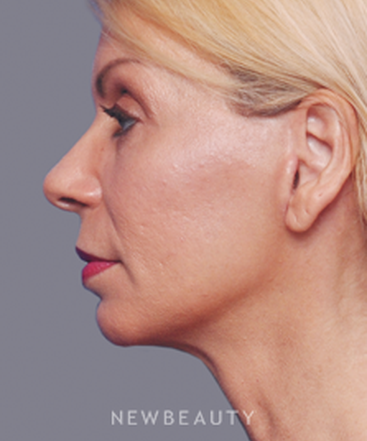 dr-alan-durkin-browlift-blepharoplasty-facelift-liposuction-b