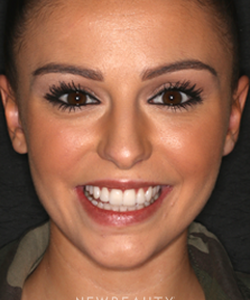 dr-laurence-rifkin-smile-makeover-b