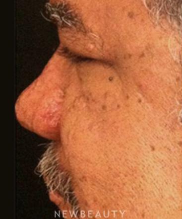 dr-hooman-khorasani-dermabrasion-b