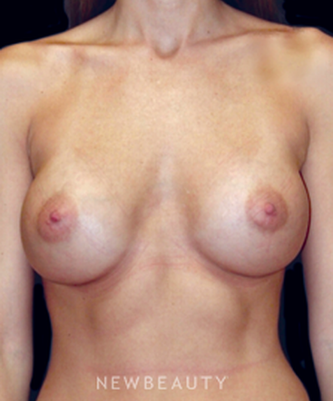 dr-scott-newman-breast-augmentation-b