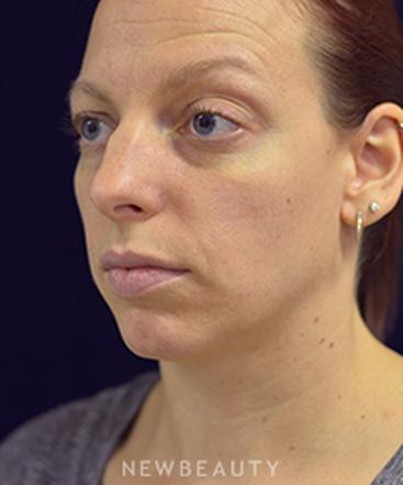 dr-cynthia-poulos-rhinoplasty-b