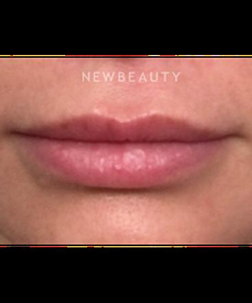 dr-jill-fichtel-lip-enhancement-b