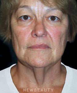 dr-brent-smith-eyelift-facelift-b