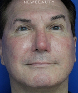 dr-joseph-russo-natural-looking-results-face-ebg-b
