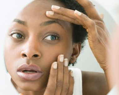 7 Different Factors Cause Under-Eye Circles
