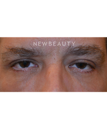 dr-baljeet-k-purewal-blepharoplasties-b