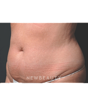 dr-ruth-hillelson-coolsculpting-b