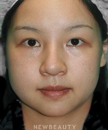 dr-arthur-y-yu-facelift-with-fat-transfer-b