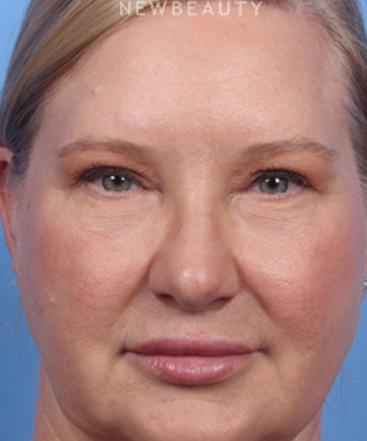 dr-kelly-bomer-blepharoplasties-b