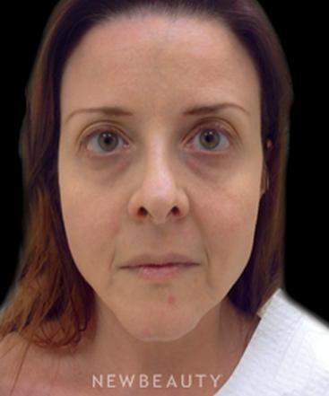 dr-julie-russak-injectables-fillers-b