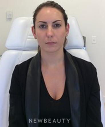 dr-quenby-erickson-skin-rejuvenation-b