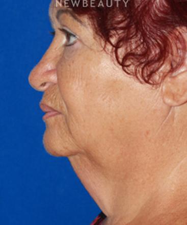 dr-konstantin-vasyukevich-lower-facelift-b