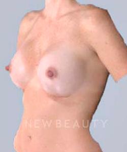 dr-bradley-bengtson-simulated-implants-b