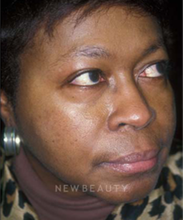 dr-charles-crutchfield-acne-treatments-b