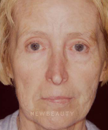 dr-charles-crutchfield-injectable-fillers-b