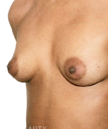 dr-david-rapaport-saline-breast-implants-b