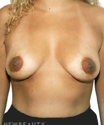 dr-david-rapaport-saline-breast-implants-b