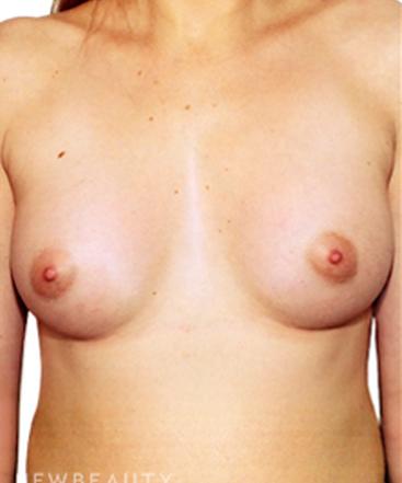 dr-david-rapaport-breast-implants-b