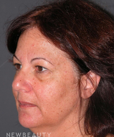 dr-andrew-jacono-facelift-upper-lower-blepharoplasty-b