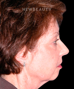 dr-andrew-jacono-facelift-eyelift-b