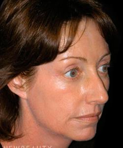 dr-andrew-jacono-mid-facelift-eyelift-b