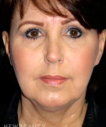 dr-george-sanders-facelift-chin-augmentation-b