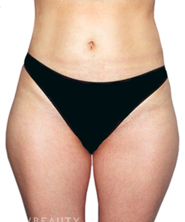 dr-david-rapaport-liposuction-b