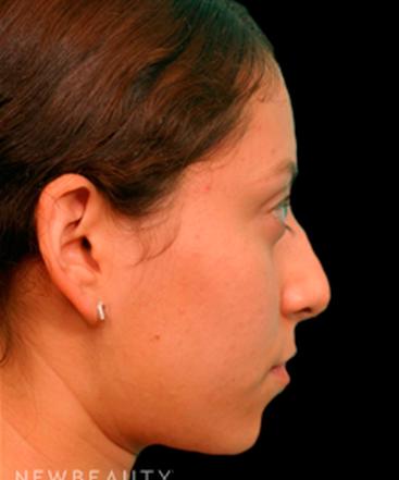 dr-juan-carlos-fuentes-rhinoplasty-b