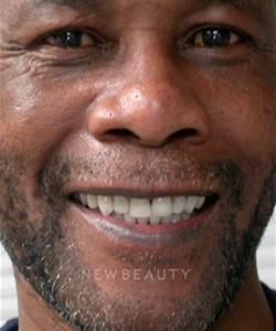 dr-irene-grafman-bonding-crowns-dentures-b