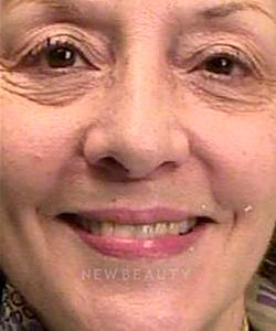 dr-irene-grafman-teeth-whitening-b