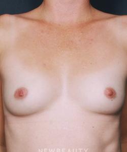 dr-joseph-grzeskiewicz-breast-augmentation-b