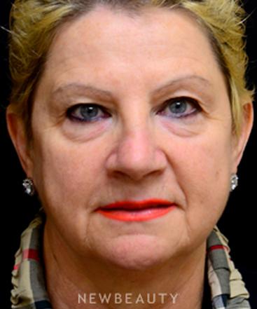 dr-mokhtar-asaadi-browlift-eyelift-injectables-b